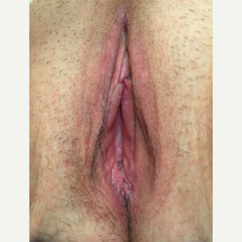 35-44 year old woman treated with Vaginal Rejuvenation after 3283037