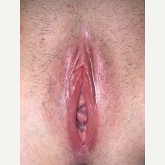 35-44 year old woman treated with Vaginal Rejuvenation before 3283037