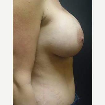 35-44 year old woman treated with Mommy Makeover after 3447444