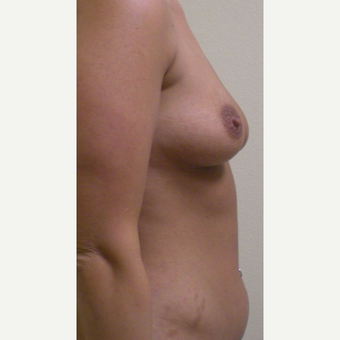 35-44 year old woman treated with Mommy Makeover before 3447444
