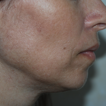 45-54 year old woman treated with Fractional Laser Resurfacing after 3384056