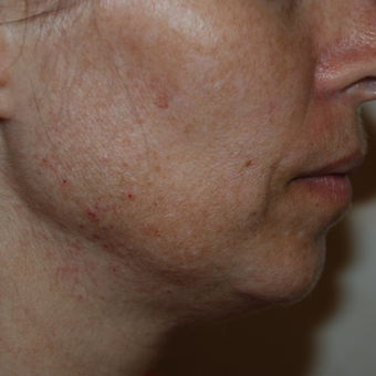 45-54 year old woman treated with Fractional Laser Resurfacing before 3384056