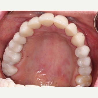 25-34 year old woman treated with Dental Implants after 2178379