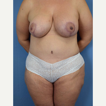 45-54 year old woman treated with Mommy Makeover after 3589165