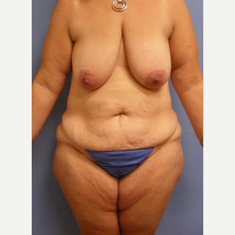 45-54 year old woman treated with Mommy Makeover before 3589165