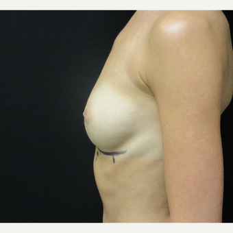 18-24 year old woman treated with Breast Augmentation before 3187749