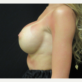 18-24 year old woman treated with Breast Augmentation after 3187749