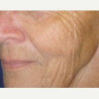 65-74 year old woman treated with Fractionated CO2 Laser Skin Resurfacing before 2848144