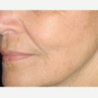 65-74 year old woman treated with Fractionated CO2 Laser Skin Resurfacing after 2848144