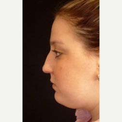 Rhinoplasty before 3535048