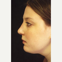 Rhinoplasty after 3535048