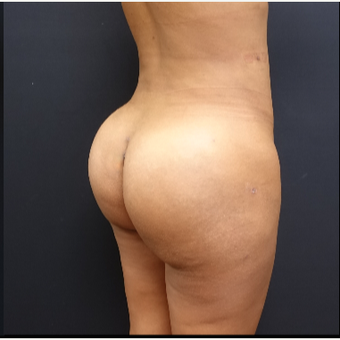 25-34 year old woman treated with Fat Transfer after 3731844