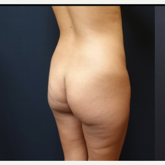 25-34 year old woman treated with Fat Transfer before 3731844