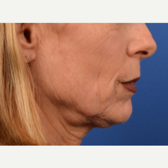 Neck lift before 3220658