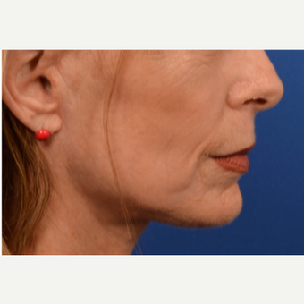 Neck lift after 3220658