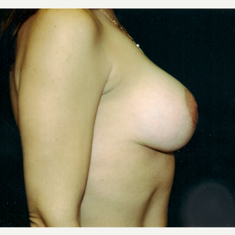 35-44 year old woman treated with Breast Augmentation after 3236217