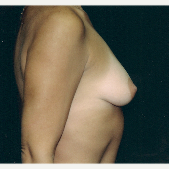 35-44 year old woman treated with Breast Augmentation before 3236217