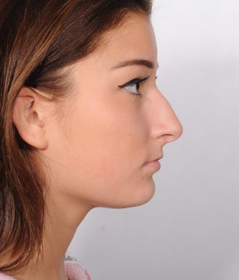 Young woman requesting a straighter profile. 1299958