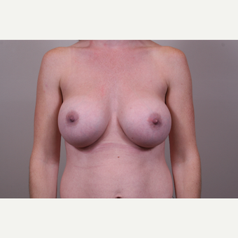 18-24 year old woman treated with Breast Augmentation after 3768581