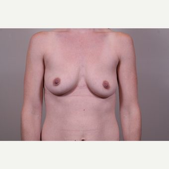 18-24 year old woman treated with Breast Augmentation before 3768581
