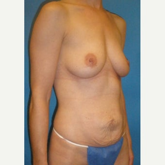 25-34 year old woman treated with Mommy Makeover before 1941658