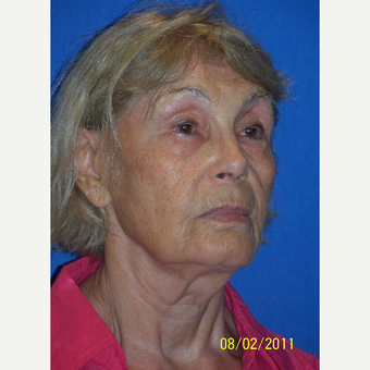 55-64 year old woman treated with Facelift before 3033653