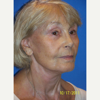 55-64 year old woman treated with Facelift after 3033653