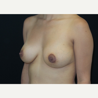 25-34 year old woman treated with Breast Lift with Implants after 3305909