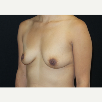 25-34 year old woman treated with Breast Lift with Implants before 3305909