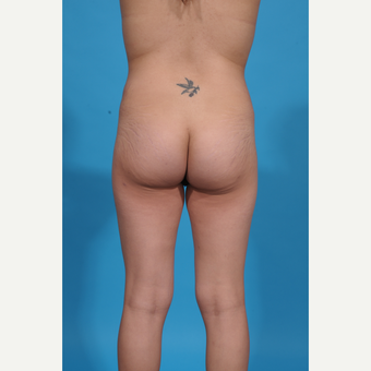 25-34 year old woman treated with Brazilian Butt Lift before 3776948