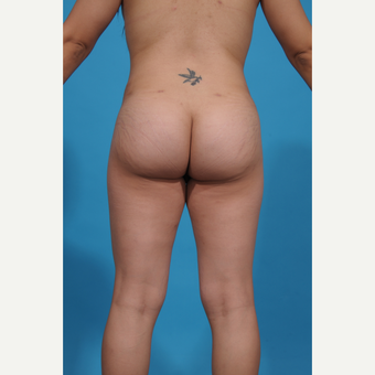 25-34 year old woman treated with Brazilian Butt Lift after 3776948