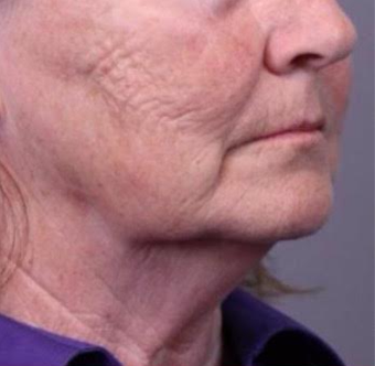 65-74 year old woman treated with Facelift before 3769312