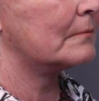 65-74 year old woman treated with Facelift after 3769312