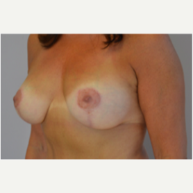 Breast Lift with Implants after 3058197