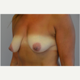 Breast Lift with Implants before 3058197