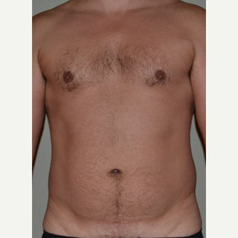 45-54 year old man treated with Vaser Liposuction
