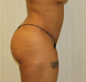 25-34 year old woman treated with Tummy Tuck after 3286209