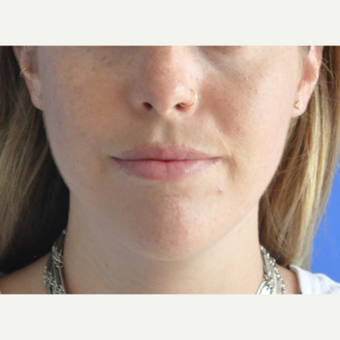 25-34 year old woman treated with Lip Augmentation after 3219567