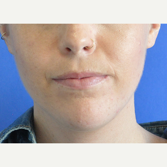 25-34 year old woman treated with Lip Augmentation before 3219567