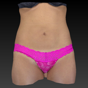 25-34 year old woman treated with Smart Lipo after 3814818