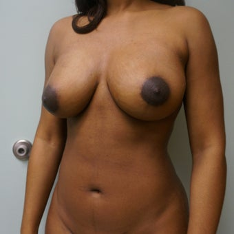 25-34 year old woman treated with Breast Fat Transfer after 2570147