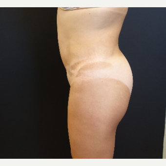 35-44 year old woman treated with Butt Augmentation before 3234492