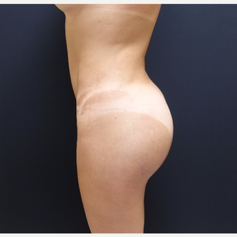 35-44 year old woman treated with Butt Augmentation after 3234492