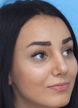 18-24 year old woman treated with Rhinoplasty after 3826183