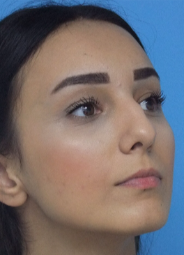 18-24 year old woman treated with Rhinoplasty before 3826183