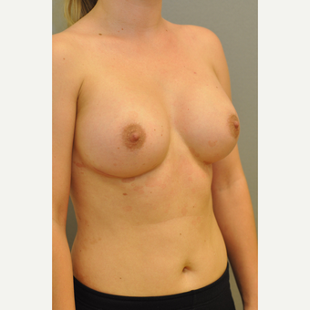 25-34 year old woman treated with Breast Augmentation after 3412415