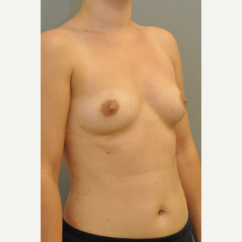 25-34 year old woman treated with Breast Augmentation before 3412415