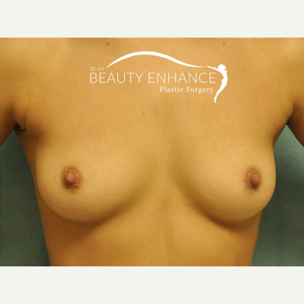 Breast Augmentation before 3377482