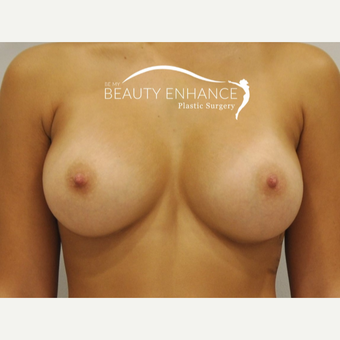 Breast Augmentation after 3377482