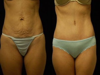 Abdominoplasty before 503890